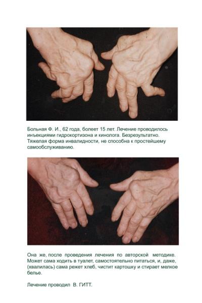 Гитт, Виталий Гитт, лечение артроза кисти