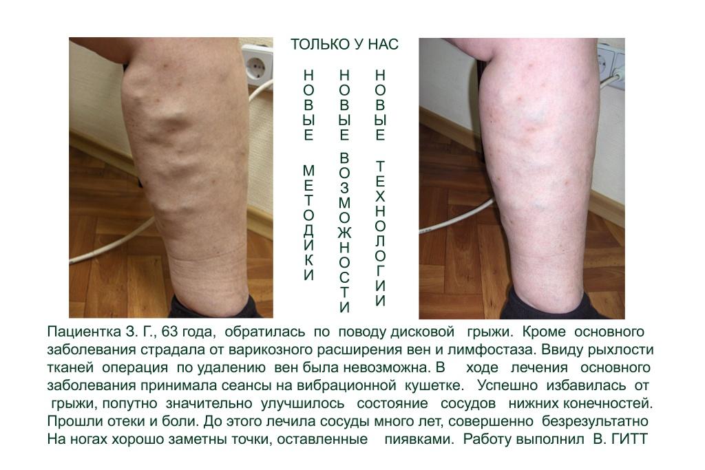 Лечение суставов и вен суставов остеохондрозом злокачественными новообразованиями только наиболее